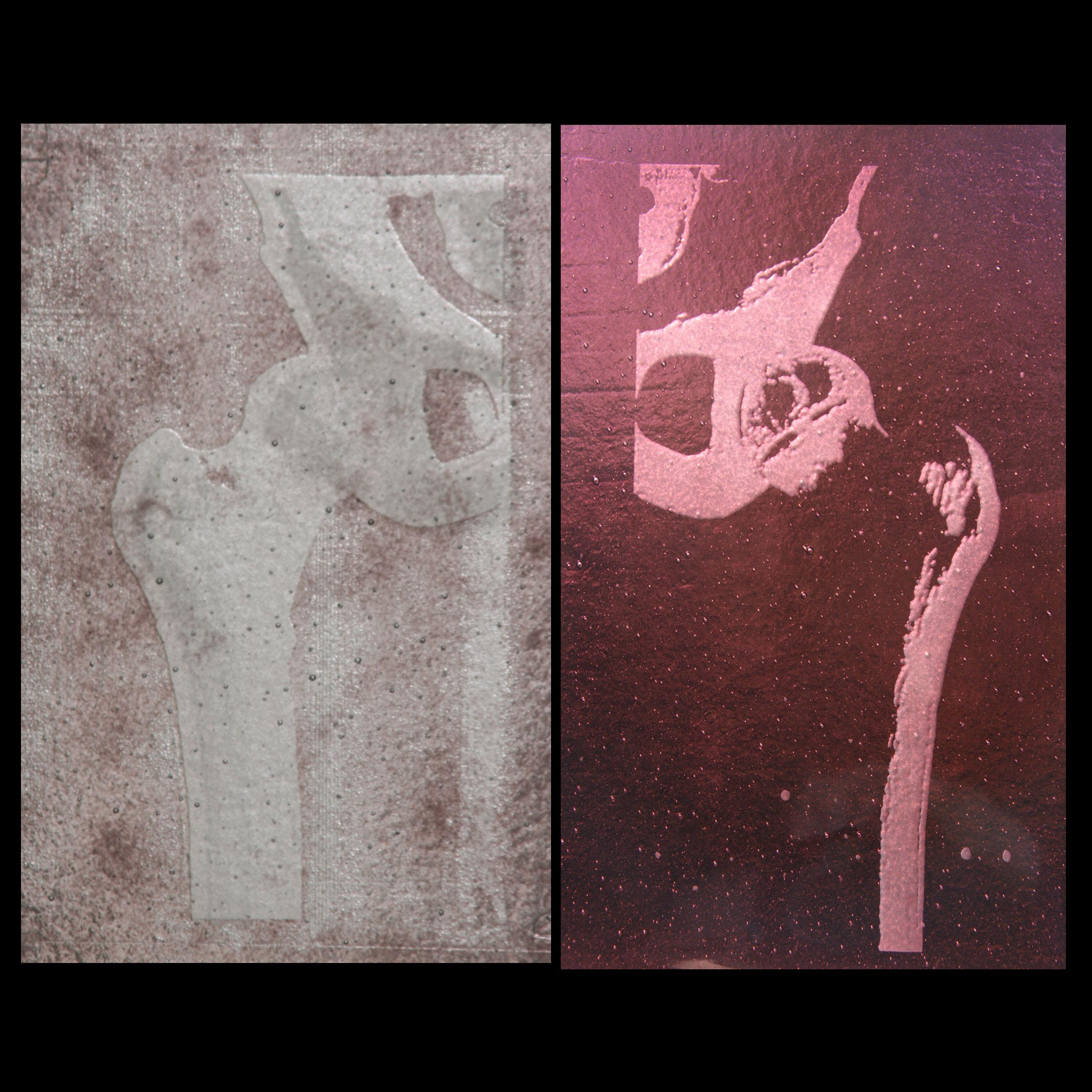 X-ray I-II